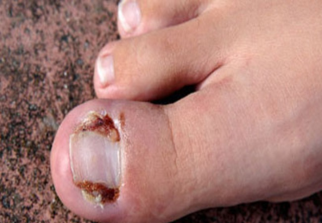 Badly Infected Ingrown Toenail Treatments For Ingrown...