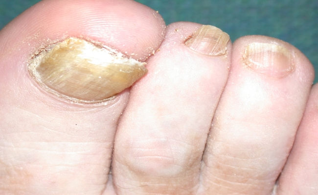 Tinea Unguim (Nails of hands and feet)