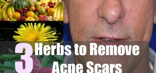 3 Herbs to Remove Acne Scars