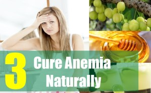 3 Cure Anemia Naturally