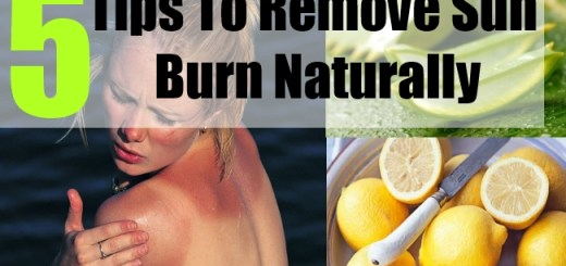 5 Tips To Remove Sun Burn Naturally
