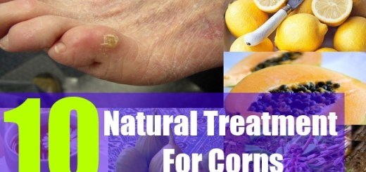 10 Natural Treatment For Corns