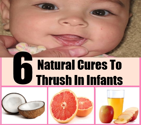 6 Natural Cures To Thrush In Infants