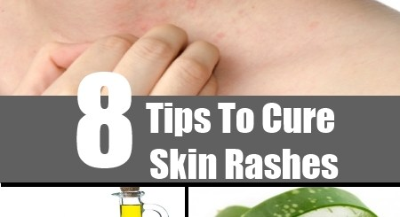 Tips To Cure Skin Rashes