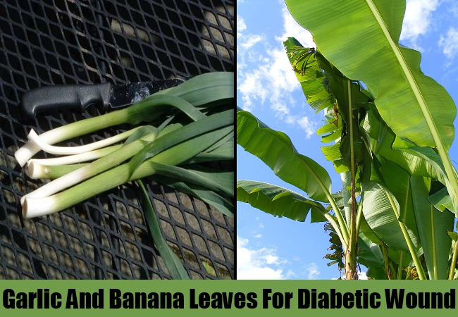Garlic And Banana Leaves For Diabetic Wound