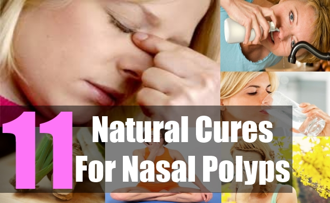 11 Effective Natural Cures For Nasal Polyps