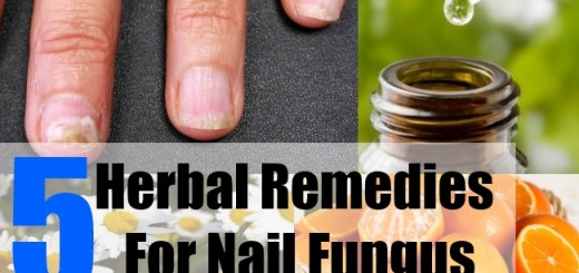 5 Herbal Remedies For Nail Fungus