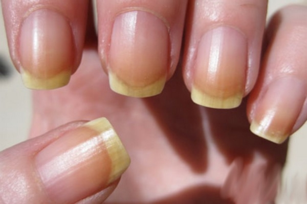 Top 5 Home Remedies For Yellow Nails