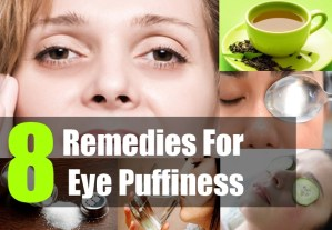 8 Remedies For Eye Puffiness