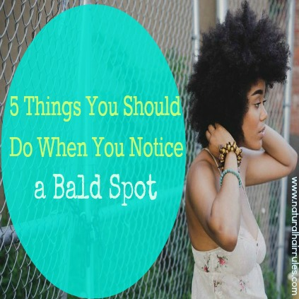 5 Things You Should Do When You Notice A Bald Spot 2