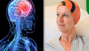 What? Brain cancer is curable with the help of liquid Aspirin? Amazing facts!