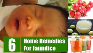 Effective home remedies for jaundice for natural treatment!