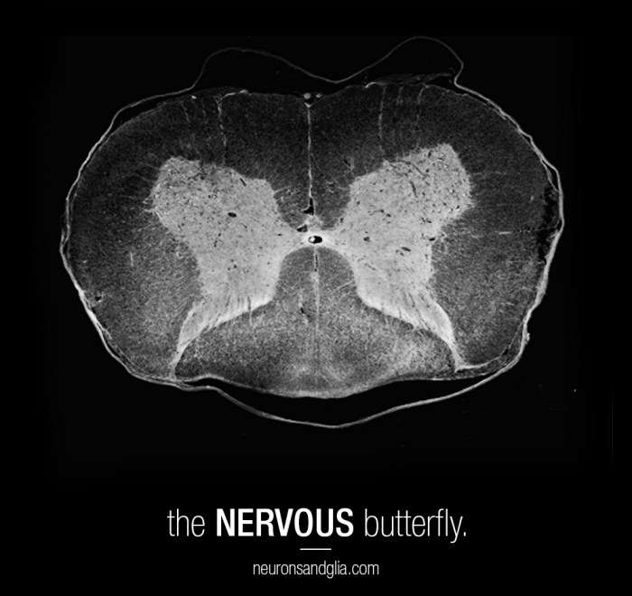 the nervous butterfly