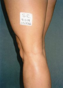 varicose veins treatment 2