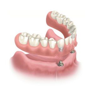 Dental Implant 21