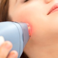 All About Laser Hair Removal Treatment