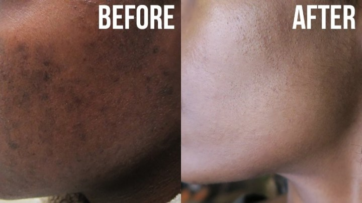 home remedies for hyperpigmentation_New_Love_Times