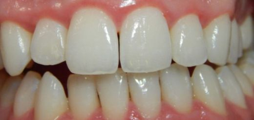 home remedies for receding gums_new_love_times