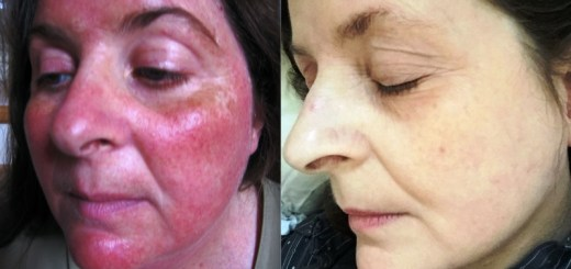 home remedies for rosacea_New_Love_Times