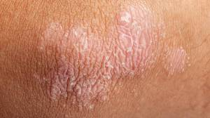 bigstock-Psoriasis-On-Elbow-Skin-65113735-1