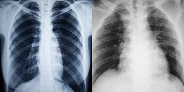 Πώς γίνονται οι πνεύμονες με το κάπνισμα – Μοναδικές ιατρικές εικόνες [pics, vid]