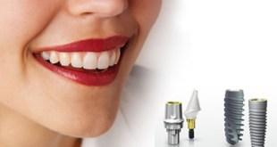 Phục hình răng hoàn hảo với phương pháp cấy răng implant