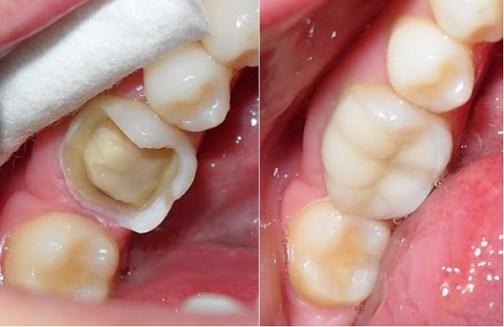 bọc sứ cho răng cối bị vỡ