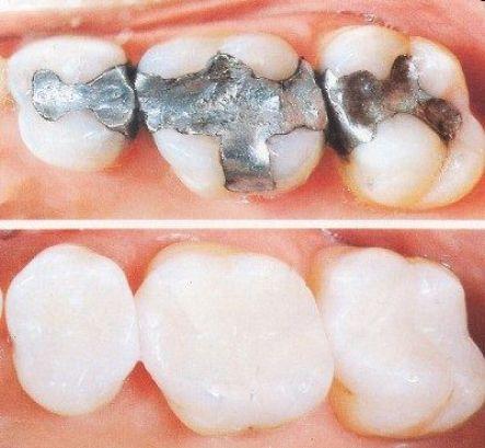 bọc răng sứ loại nào đẹp nhất