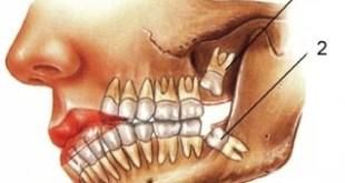 Nhổ răng khôn tại Nha Khoa Quốc tế Á Châu