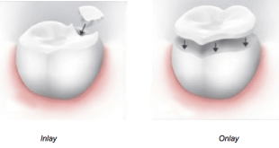dental-inlay-vs-onlay