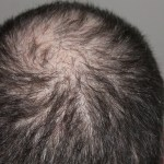 Is Hair Transplant Beneficial? Why you Should Go For it