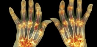 The Best Supplements For Arthritis – Natural Cures For Joint Pain