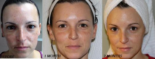 Rodan + Fields before and after photos