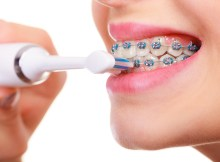 oral health care with braces