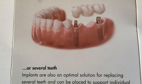 new teeth mavis