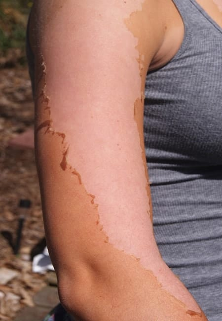 Know More on How to Even Out a Tan after Peeling