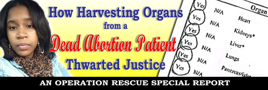 Organ Harvesting-Wilson2
