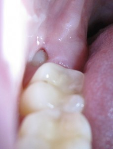 Wisdom Tooth Soft Tissue Impaction