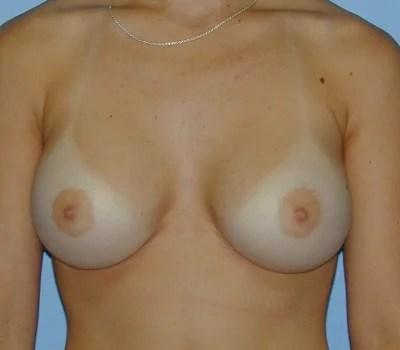 32c natural boobs