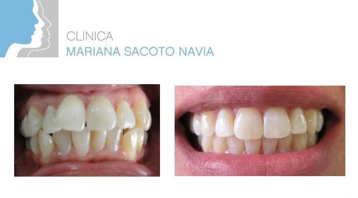 Caso Ortodoncia Invisble Invisalign antes y después Clínica Mariana Sacoto Navia