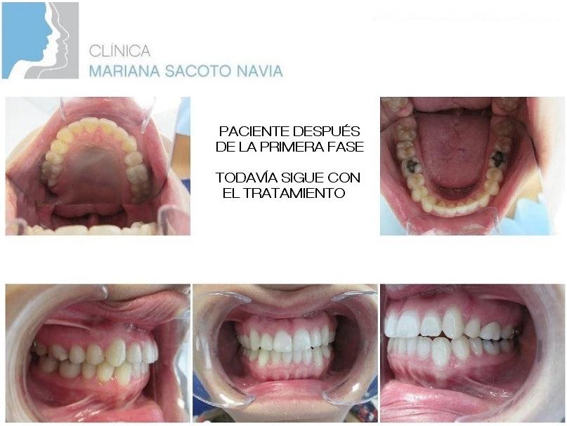 Clínica Mariana Sacoto Navia Caso Ortodoncia Invisalign MTS después