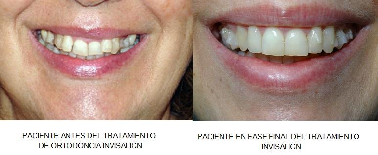antes y después tratamiento ortodoncia invisible invisalign