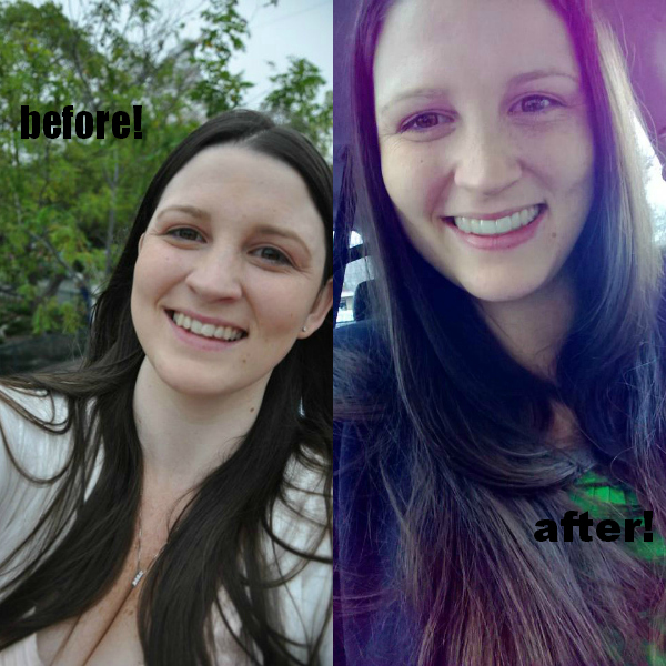 before and after of teeth