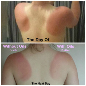 DIY Sunburn Relief with Essential Oils