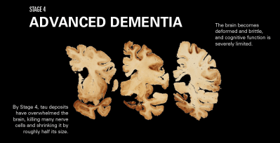 How CTE Affects the Brain | League of Denial: The NFL's Concussion Crisis | FRONTLINE | PBS ...