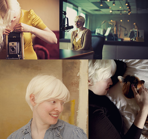Woman Born Completely Blind Now a Successful Photographer albinism mini