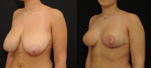 photo-reduction-mammaire-02