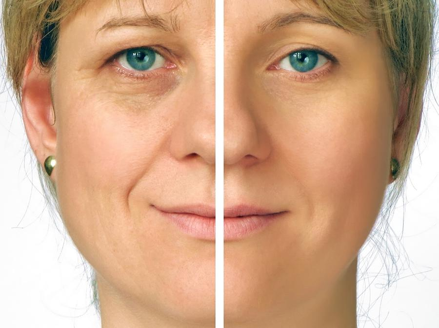 Learn More About Aging