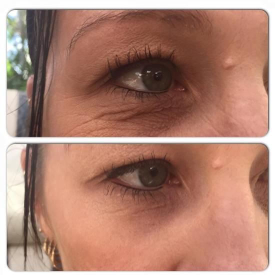 Instantly Ageless - Anti aging cream