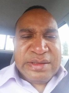 The famous crying 'selfie' - are crocodile tears a fitting tribute